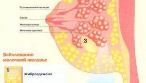 Уплотнение в молочной железе перед месячными