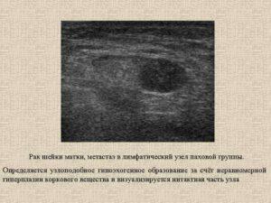 Гипоэхогенный узел в матке