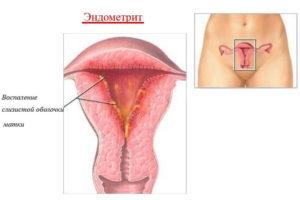 Что такое эндометрит матки