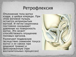 Что означает матка retroflexio