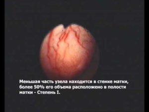 Оперировать или нет субмукозный узел в матке