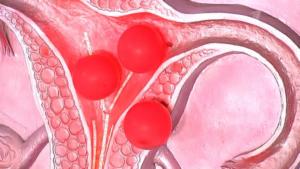 Скопление крови в матке