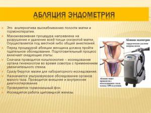 Что такое абляция эндометрия