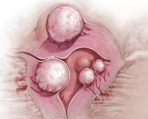 Перерождается ли миома матки в рак матки