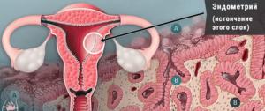 Наращивание эндометрия