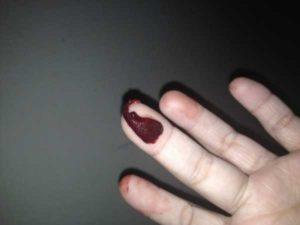 Почему при месячных кровь черная