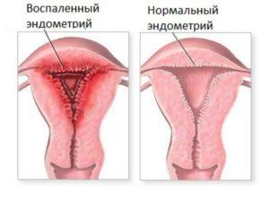 Чем лечится эндометрит матки