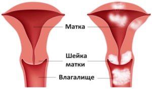 Причины боли в шейке матки