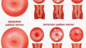По какой причине шейка матки может быть красная