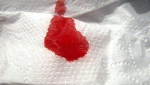 Алая кровь во время месячных