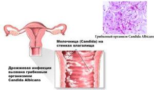 Дрожжевая инфекция у женщин