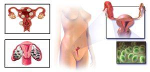 Причины тонкого эндометрия
