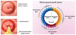 Что такое гиперплазия шейки матки