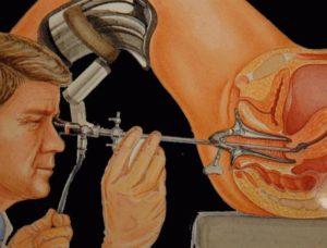 Что такое гистероскопия матки