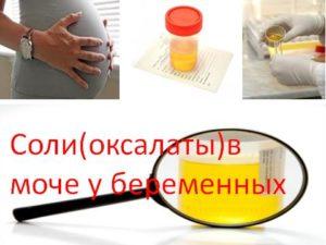Оксалаты в моче при беременности