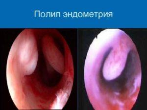 Нужно ли удалять полип эндометрия