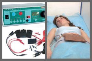 Можно ли делать электрофорез при месячных
