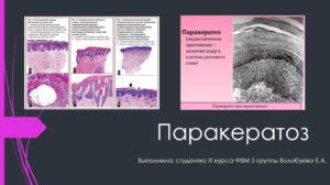 Лечение паракератоза шейки матки