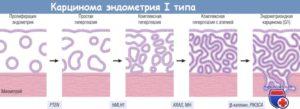 Что такое эндометрий пролиферативного типа