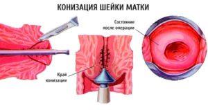 Электроконизация шейки матки при дисплазии