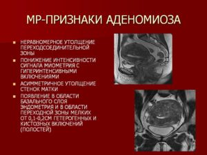 Какими препаратами лечится аденомиоз матки