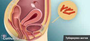 Симптомы туберкулёза матки