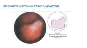 Что такое железистый полип эндометрия