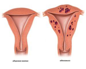 Миома и аденомиоз матки у женщин