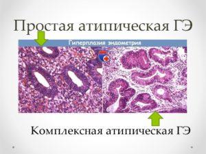 Что называют атипической гиперплазией эндометрия матки