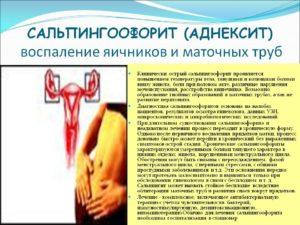 Хронический сальпингоофорит (воспаление придатков): признаки, как лечить