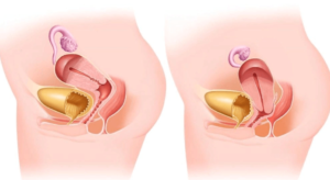 Опущение матки в гинекологии