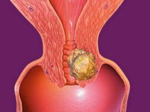 Что называют папилломатозом шейки матки