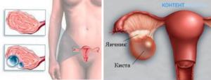 Увеличенные яичники у женщин причины