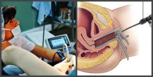 Санация в гинекологии что это