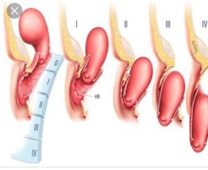 Симптомы и лечение опущения матки после родов