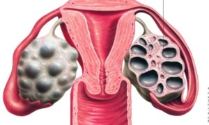 Мультикистоз яичников: лечение