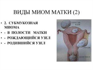 Субмукозная разновидность миомы матки
