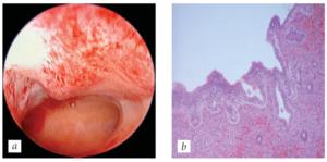 Что такое атрофичный эндометрий