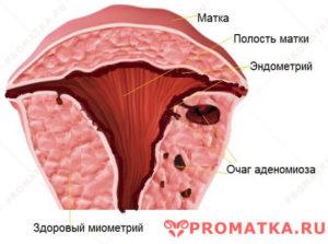 Что такое очаговый аденомиоз матки