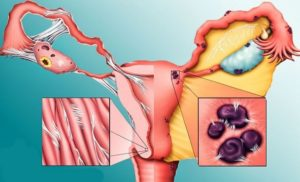 Причины возникновения эндометриоза у женщин