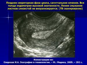 Эхогенность эндометрия повышена что это