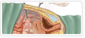Способы удаления миомы матки