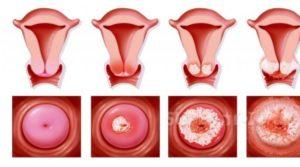Что называют плоскоклеточной папилломой шейки матки