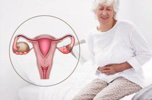 Что делать при кисте яичника в менопаузе