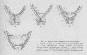 Как выглядит раскрытие шейки матки перед родами
