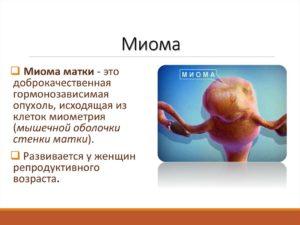 Что такое миоматоз матки