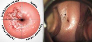 Симптомы и лечение эндометриоза шейки матки
