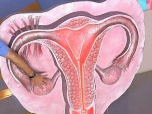 Лечение варикозного расширения вен матки