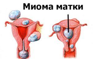 Какие выделения бывают при миоме матки