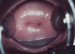 Эктопия шейки матки у нерожавших